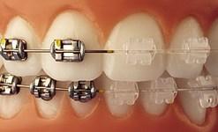 ortodontija_breketai
